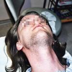 Beispiel Epilation Haarentfernung Bart
