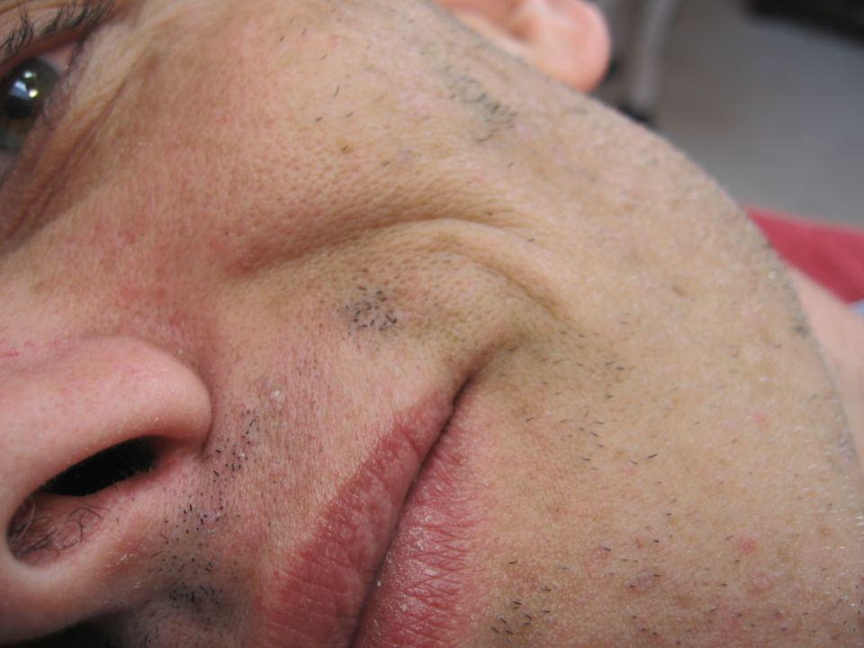 Elektro Epilation Gesichtshaare