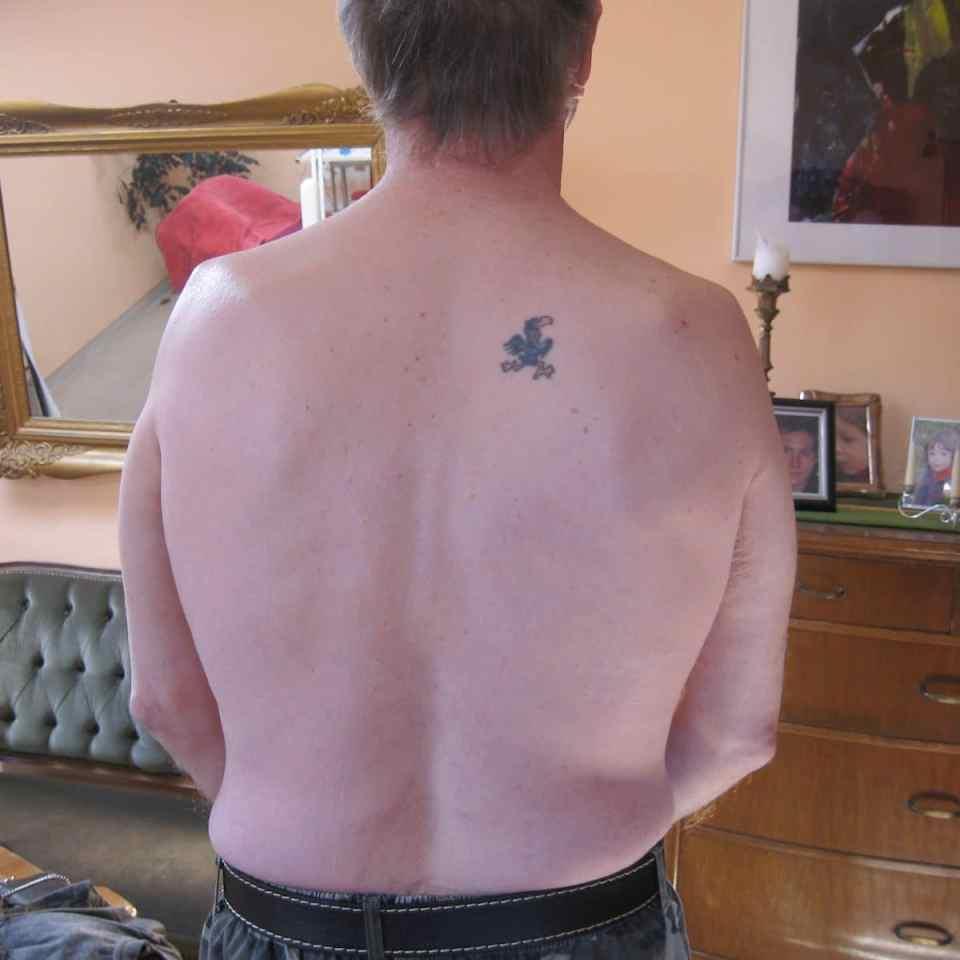 Epilation von Rücken und Schultern