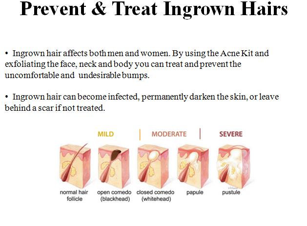 Ingrown Hair Diagram Abella Skin Care Inc