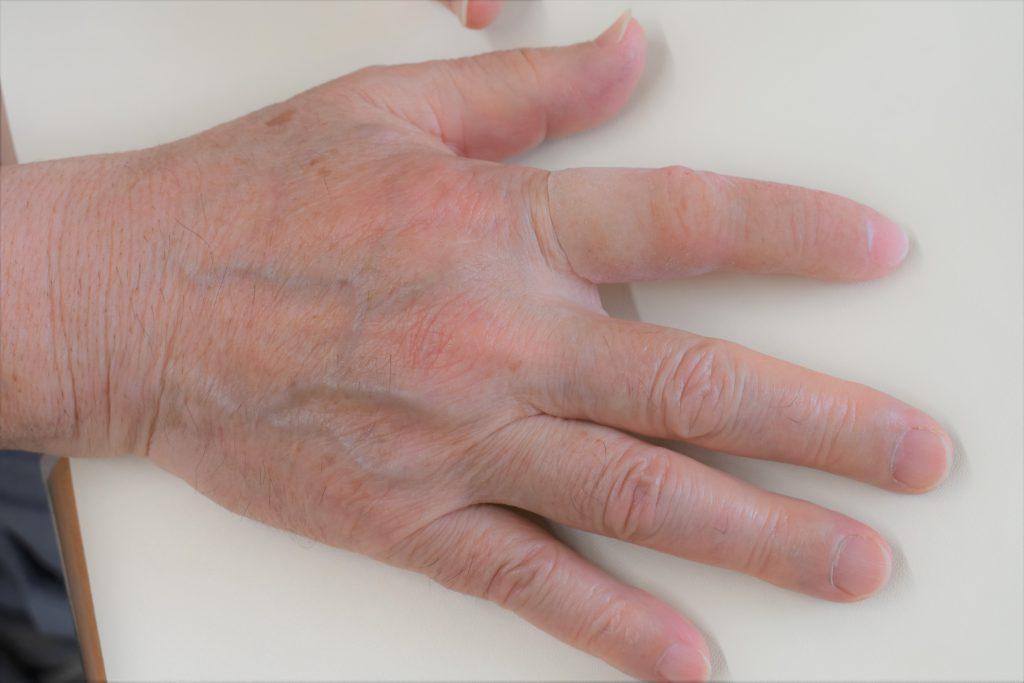 プレス機で右手の人差し指を切断し、エピテみやびでエピテーゼを製作した後の手の写真画像