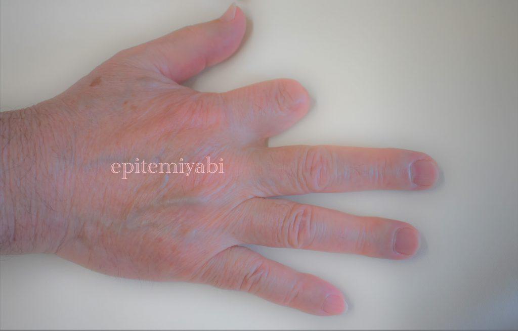 プレス機で右手人差し指を切断し、エピテみやびに相談に来たお客様の手の写真画像