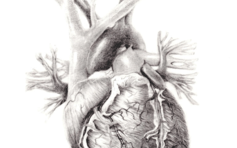 Aortic Dissection in the ED: A Review of ACEP's New Guidelines