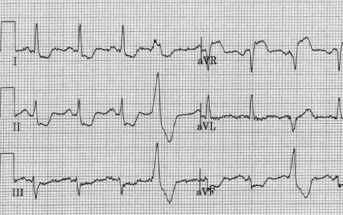 Interactive ECG: A Study in ST Elevation