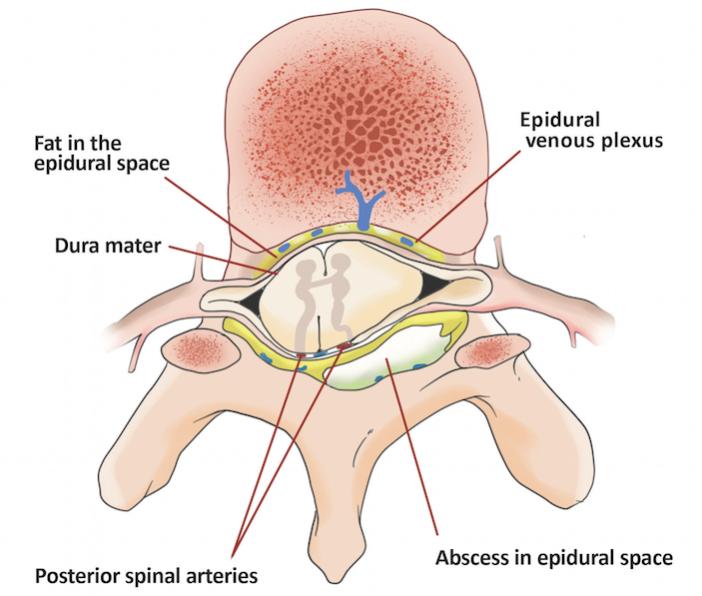 SpinalAb1