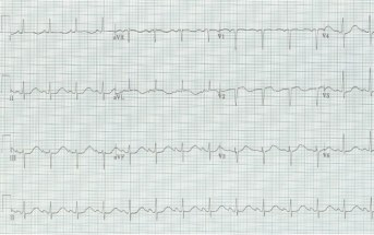 This Cause of Syncope May Be Both Predictable and Preventable