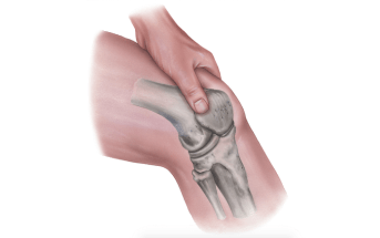 How To Confidently Rule Out Traumatic Arthrotomy of the Knee