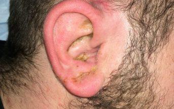 Doc, my ear hurts when I talk