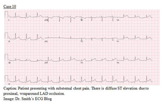 EP Monthly EKG case 10
