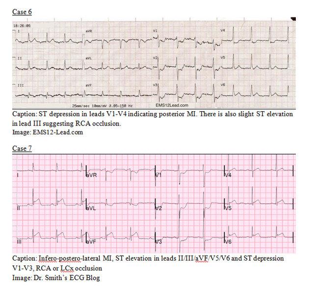 EP Monthly EKG case 6