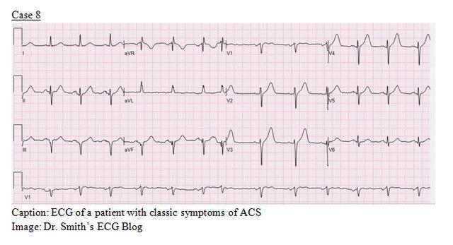 EP Monthly EKG case 8