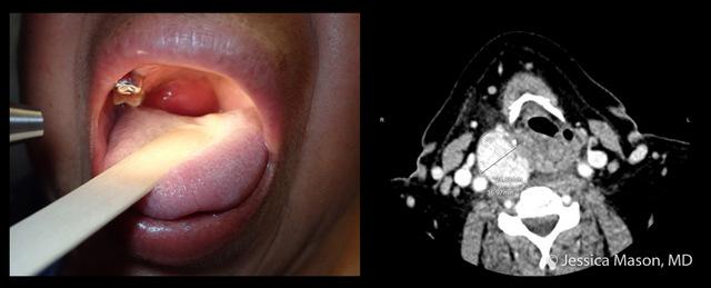 Peritonsillar abscess photo and CT_JMason-wm