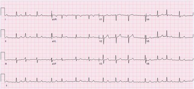 EM Coach_Thyroid Storm ECG_Atrial_Fibrillation_90_bpm