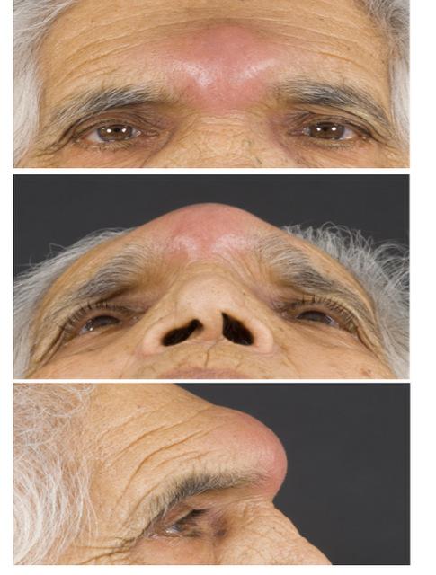 pott's puffy tumor images