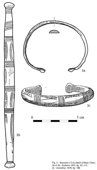 alban-MN-fig-3-depot-alban-bracelet-3-leg
