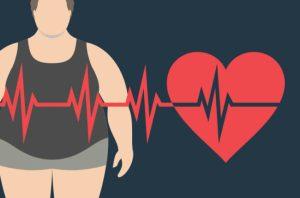 Zmenšení žaludku pomáhá obézním zbavit se cukrovky