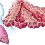 Pacientům s těžkou plicní nemocí už nikdo léčbu nevysadí