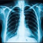 Pacienty po covidu chtějí sledovat plicní lékaři