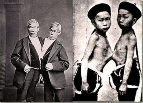 Chlapci jsou spojeni v oblasti hrudníku pásem svalů a cév. Chang má navíc vychýlenou páteř neboť má ve zvyku objímat bratra kolem ramen. Jejich zdravotní stav je jinak dobrý.