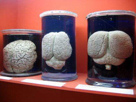 Zleva doprava: lidský mozek, mozek nosorožce a mozek delfína.