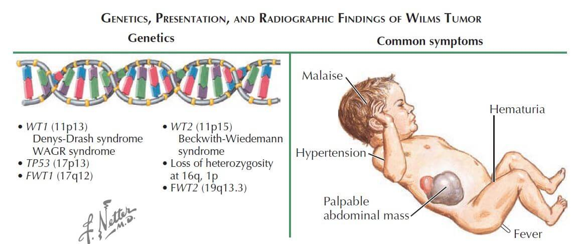 Image result for wilms tumor