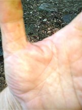 hand after bee sting