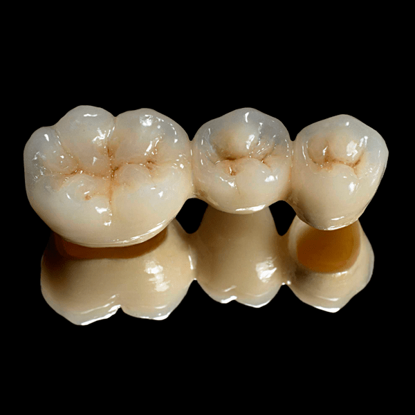 protesisi de porcelana - eradental