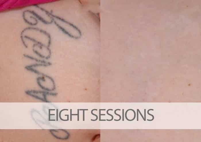How Much Will My Laser Tattoo Removal Cost?   EradiTatt