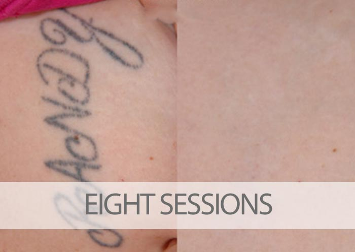 3 Things Laser Tattoo Removal Techs Should Tell You ...