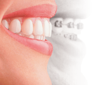 smile_with_invisalign