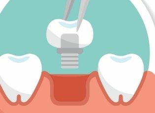Mini Dental Implants Versus Regular Implants