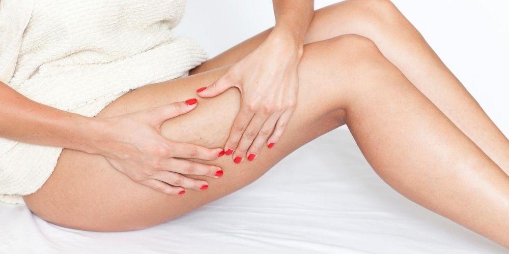 Cellulite, gambe pesanti, varici: le erbe officinali che fanno per te