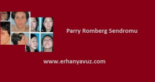 parry_romberg_sendromu