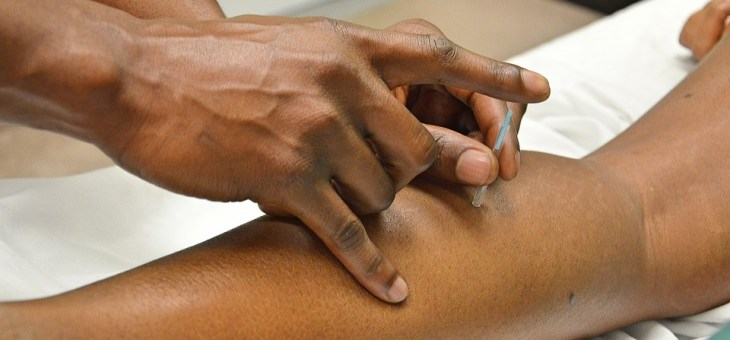 5 Benefits to Reflexology and Acupuncture