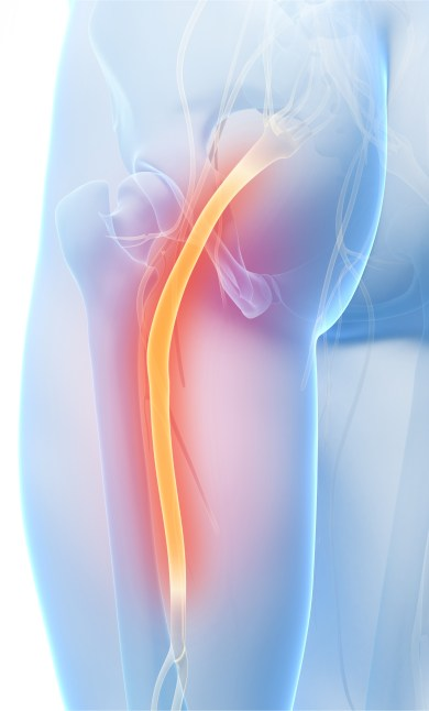 sciatica illustration
