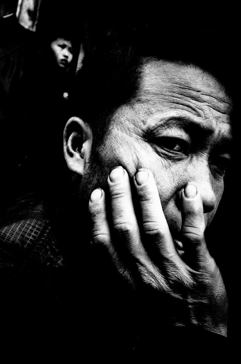 Man with hand on face. Sapa, 2017