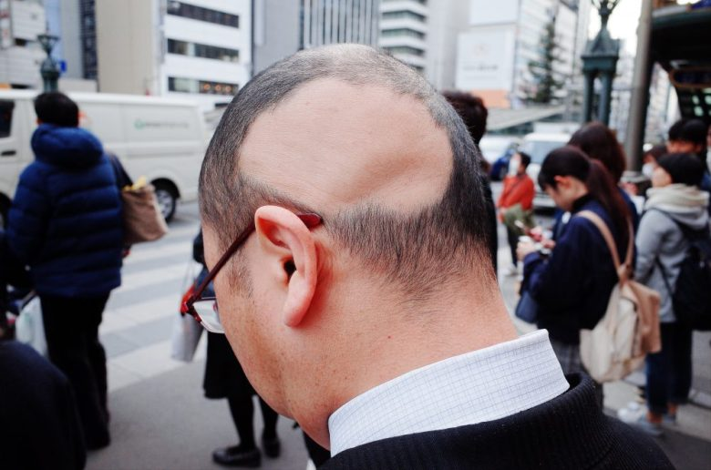 Man with bald head. Osaka. 2018