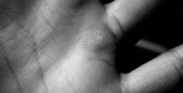 hand macro ERIC KIM callus
