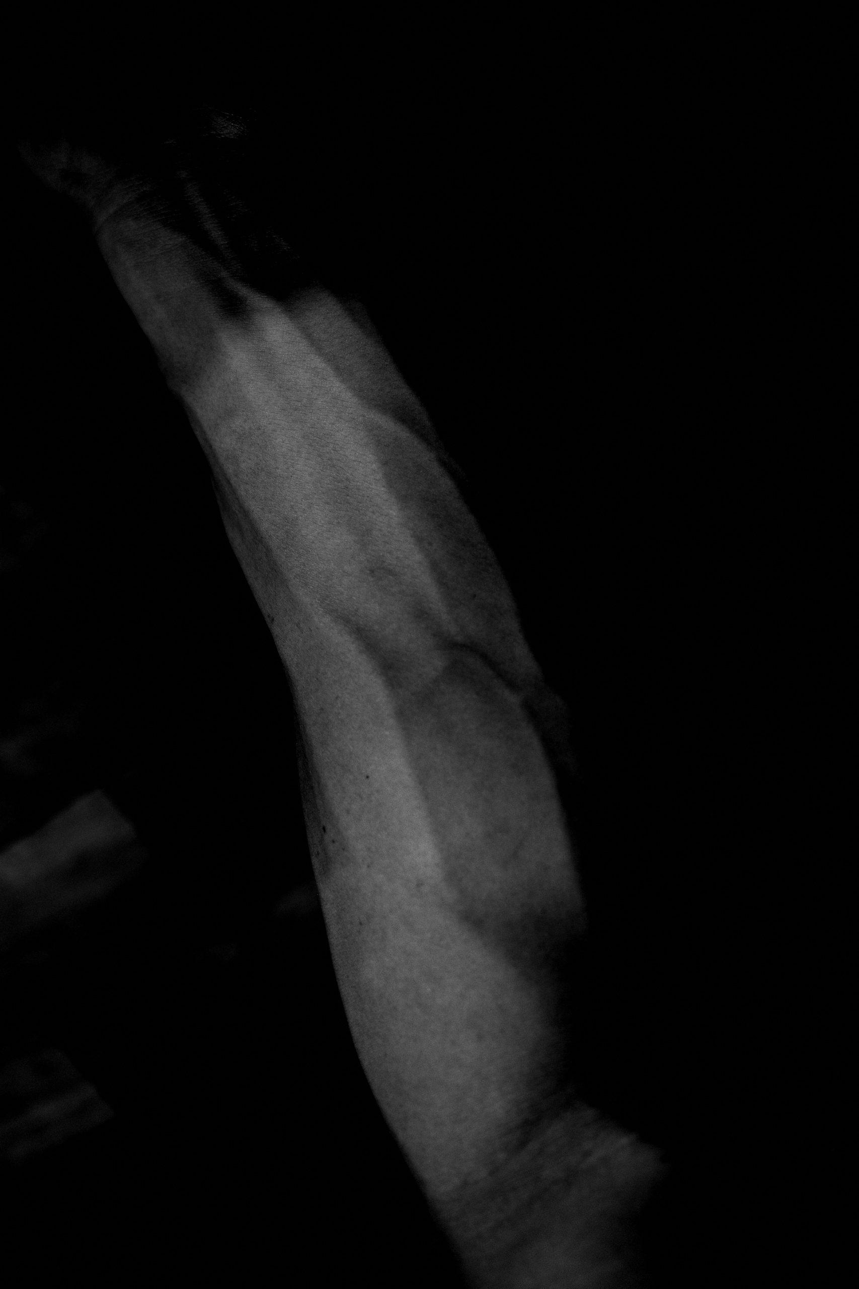 ERIC KIM arm vein