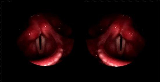Erin Gee - eye is a throat is a twin