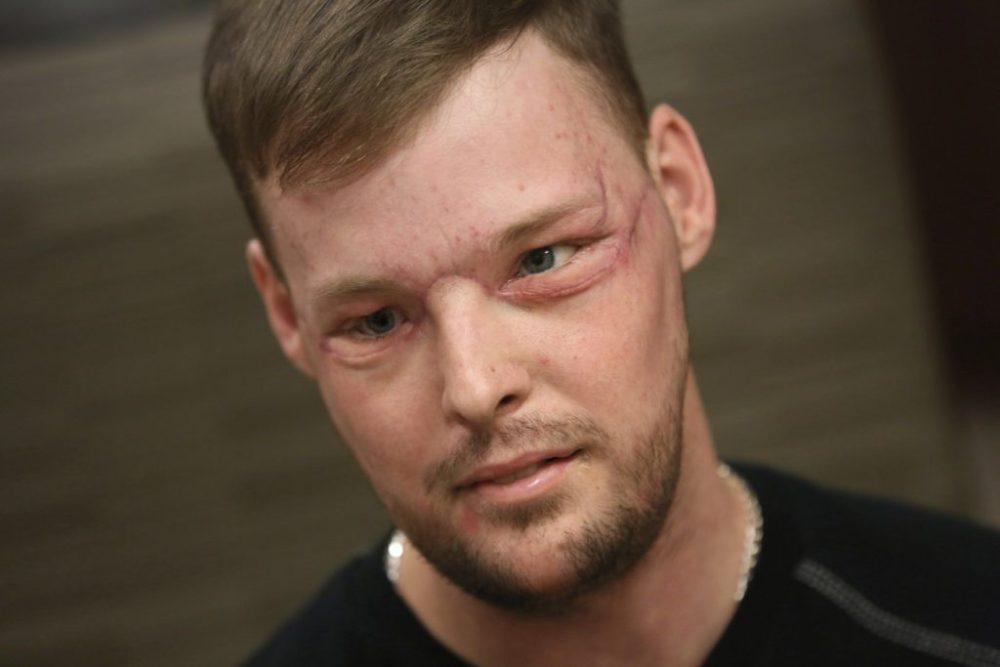 Andy Sandness tiene un nuevo rostro después del exitoso trasplante