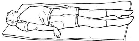 Postura de descerebración