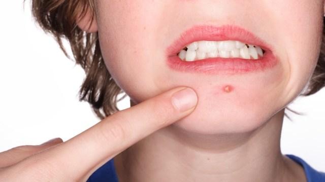 Científicos californianos crean una vacuna contra el acné