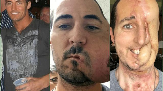 cirujano plástico, tumor, cirugía, cáncer, selfie, implante