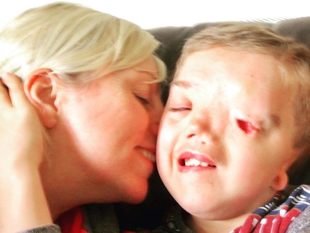 Charlie Beswick con su hijo Harry, niño con síndrome de Goldenhar