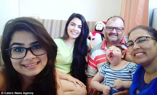 Vitória Marchioli, niña nacida con el síndrome de Treacher Collins