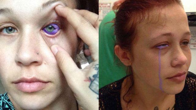 El tatuaje de ojo infectado de Catt Gallinger