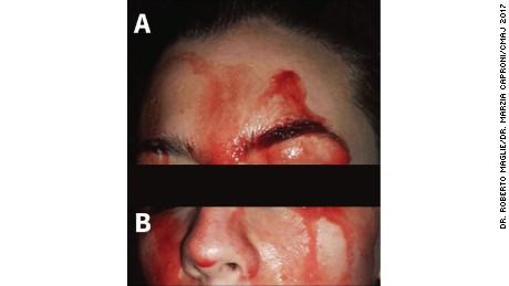 Mujer italiana de 21 años sudando sangre