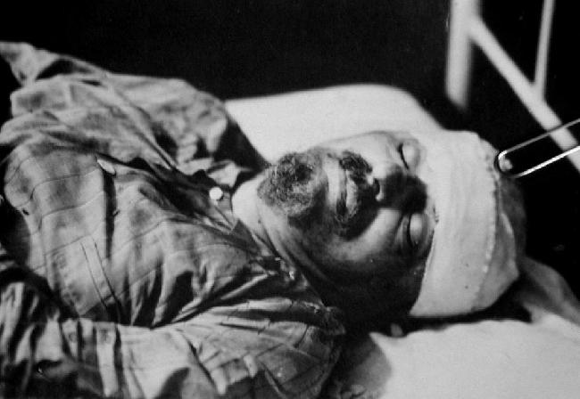 Trotsky_Herido