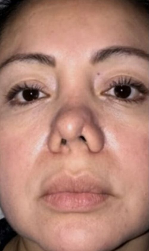 Mujer acudió por liposucción y le operaron la nariz